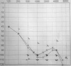 Hørekurve ud fra udvidet høreprøve d. 1. november 2012