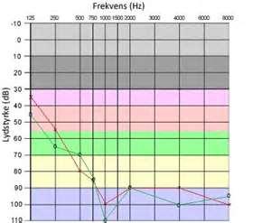 Min hørekurve (2009) - grøn streg er højre øre mens rød streg er venstre øre